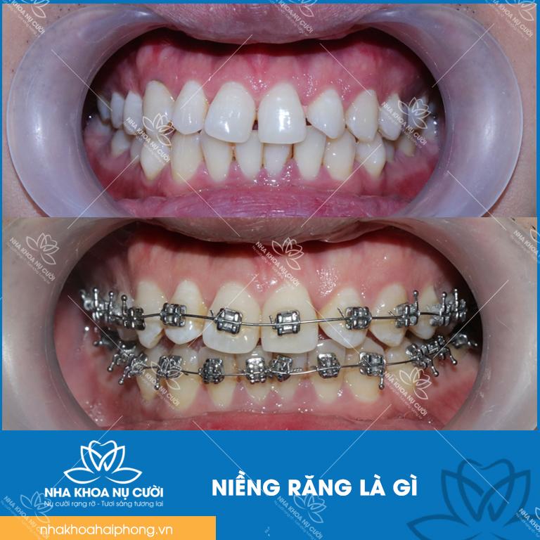 nieng-rang-la-gi