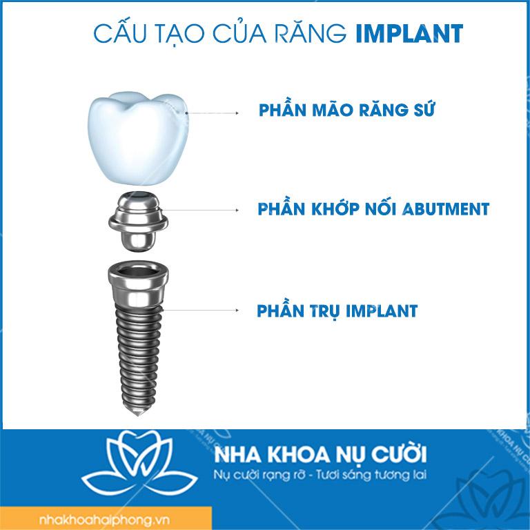 Cau-tao-tru-Implant