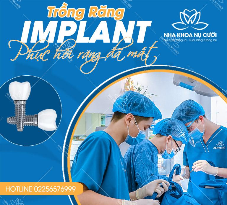 trong-rang-Implant-tại -nha-khoa-nu-cuoi