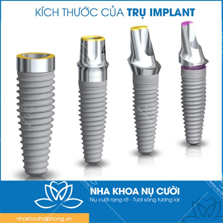 3-tieu-chi-lua-chon-tru-Implant-khi-trong-rang