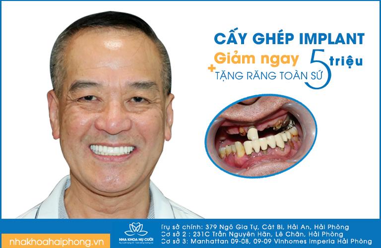 thang-vang-nha-khoa-nu-cuoi-khai-truong-co-so-3-uu-dai-cuc-soc