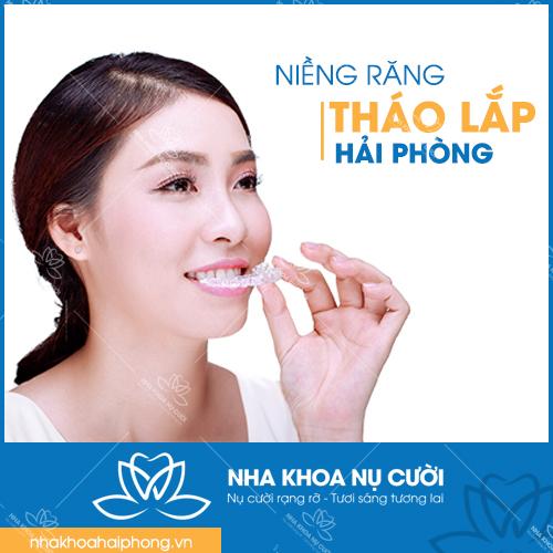 NIỀNG RĂNG THÁO LẮP HẢI PHÒNG