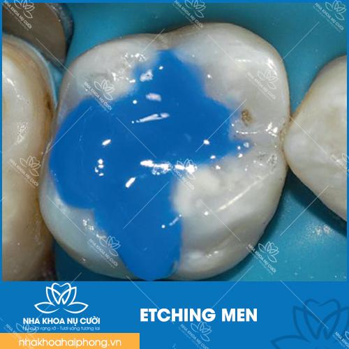etching men